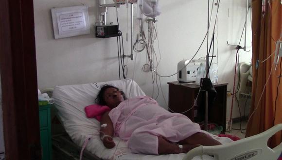 La paciente es una mujer de 45 años. Se encuentra en la sala de cuidados intensivos del del Hospital Santa Rosa. (Foto: Manuel Calloquispe)
