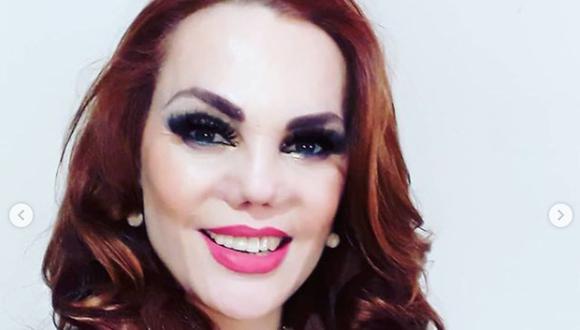 Modelo y actriz contó como fue el proceso para que puedan reconstruir su nariz (Foto: Carmen Campuzano / Instagram)