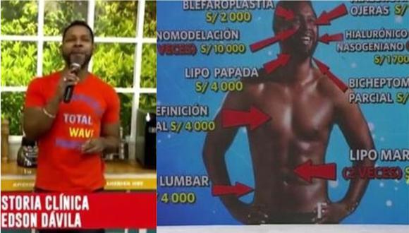 """Edson Dávila: así reaccionó cuando se reveló todos  """"arreglitos"""" que se hizo en su rostro y cuerpo. (Foto: captura de video)"""
