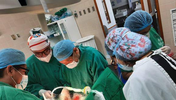 Médicos del Seguro Social de Salud (EsSalud) en Cusco, realizaron una cirugía reconstructiva de la fístula traqueoesofáfica a paciente de 49 años. (Foto: Essalud)
