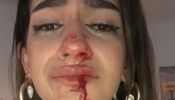 Los Mossos d'Esquadra y la Fiscalía de Delitos de Odio abrieron una investigación a raíz de la agresión hacia Eva Vildosola Léo. (Foto: Instagram).