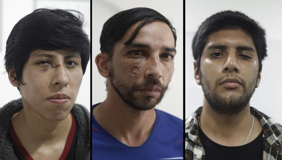 En la imagen Alex Flores, Gabruel Guevara y Fernando Nicho, tres de los jóvenes atendidos de manera gratuita. Ellos fueron heridos durante las marchas del jueves y sábado en el Cercado de Lima. (Fotos: César Campos/ GEC)