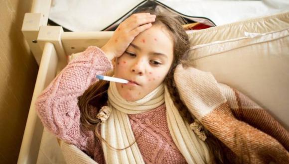 El virus del sarampión causa tos, sarpullidos y fiebre. (Foto: Shutterstock)