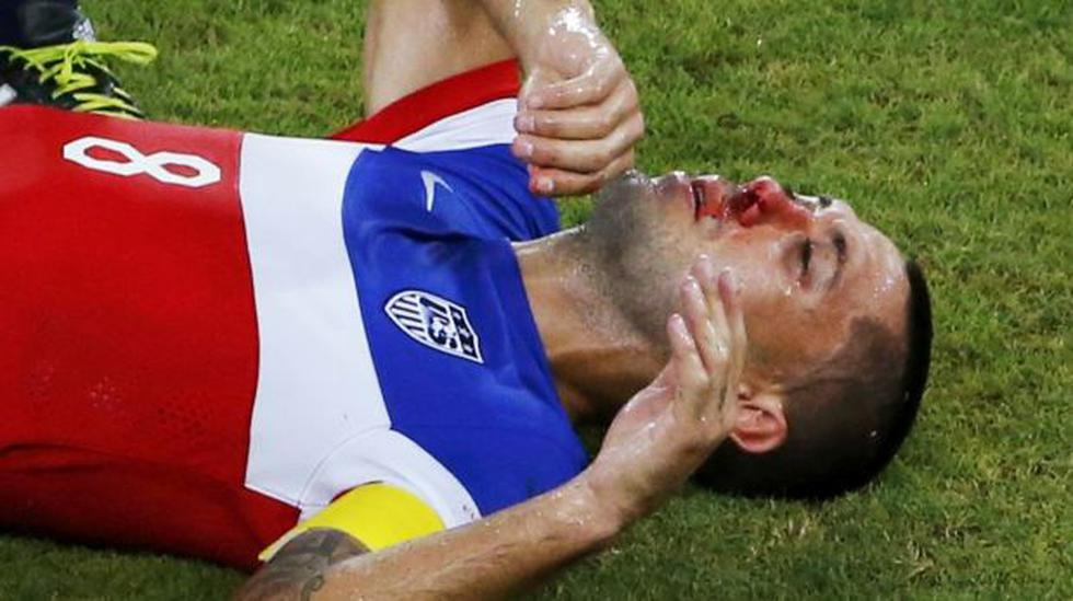 Dempsey anotó el gol más rápido y también le rompieron la nariz - 1