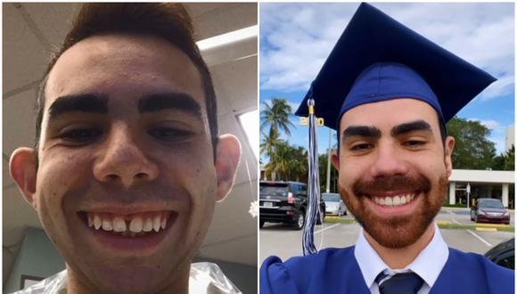 Hunter David se sometió a 9 cirugías estéticas para transformar su cara: su radical cambio se volvió viral. (Foto: @hunterdavid18 / TikTok)
