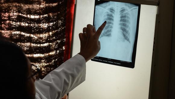 Un doctor analiza una placa de rayos x de un paciente con tuberculosis. (Foto: NOAH SEELAM / AFP)