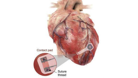 El nuevo modelo de marcapasos temporal no utiliza cables y, gracias a sus componentes no toxicos, se degrada al poco tiempo dentro del cuerpo