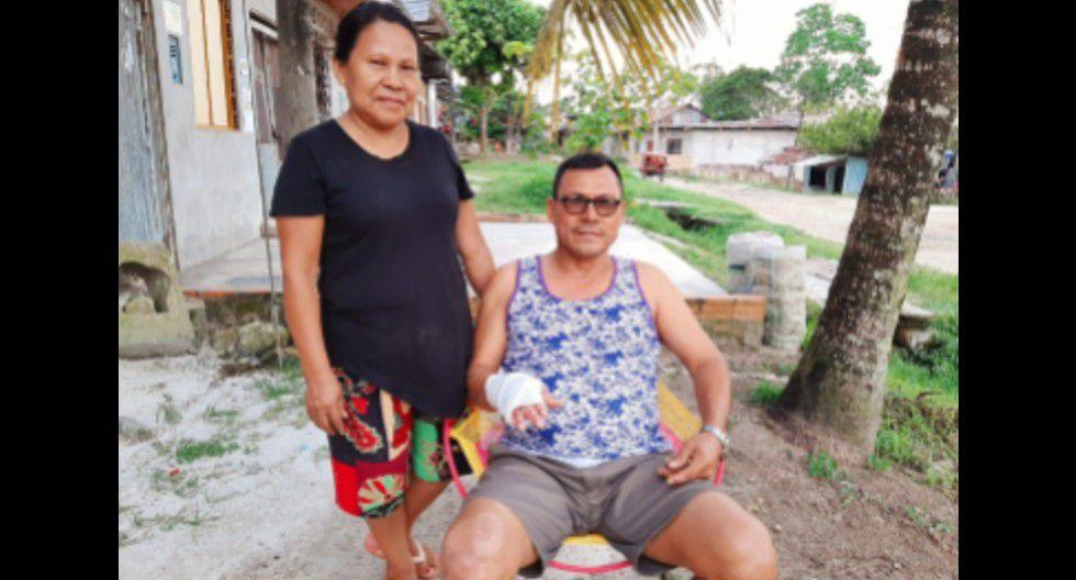 Padre de familia salvó de morir tras ser sepultado por cemento caliente. (Foto: EsSalud