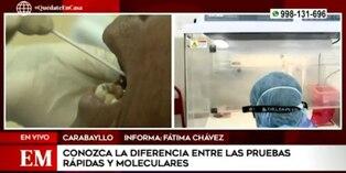 Coronavirus en Perú: estas son las diferencias entre las pruebas rápidas y moleculares