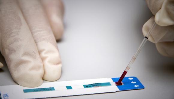 Hay diferentes tipos de pruebas de VIH. (Foto: Jody AMIET / AFP)