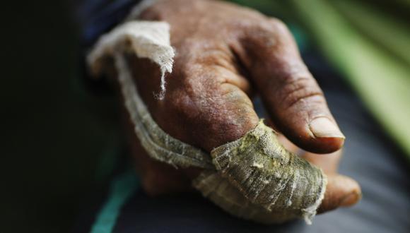 Crean gel de coca que alivia dolores de chikungunya