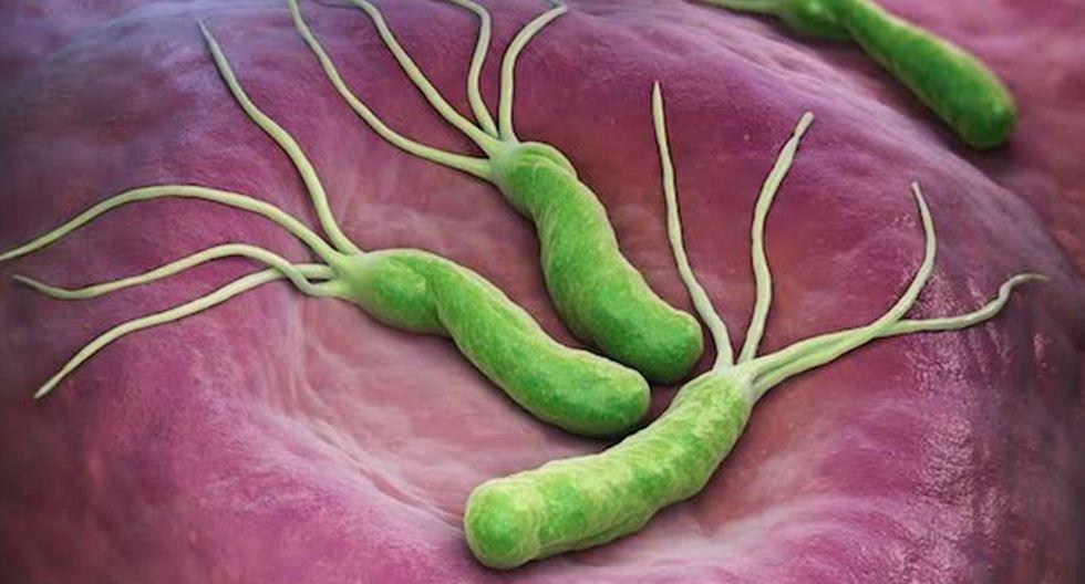 Más de 60% de la población mundial ha estado expuesta a la bacteria Helicobacter pylori. (Foto: iLex)