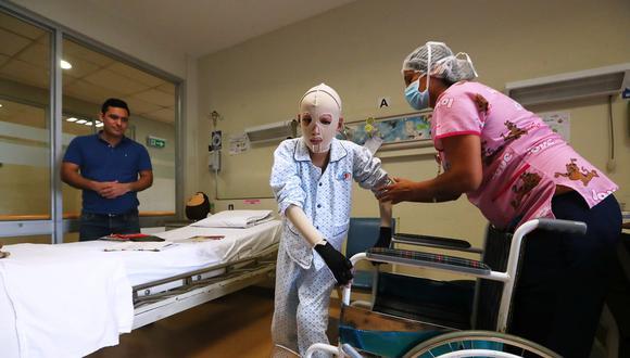 Una historia de resiliencia: Alfredo, de 13 años, ha sido sometido a trece cirugías para curar más de la mitad de su cuerpo (Foto: Alessandro Currarino).