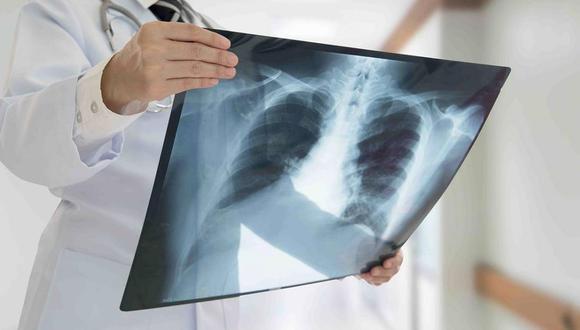 Ministerio de Salud implementa acciones de control y detección de casos de TBC durante la pandemia del COVID-19 (foto referencial)