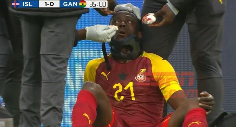 Algo insólito se vio en el amistoso entre las selecciones de Ghana e Islandia. El futbolista africano Emmanuel Boateng tenía el mencionado objeto. Entérate qué pasó. (Foto: captura)