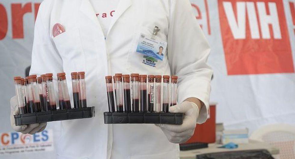 Científicos se muestran optimistas en hallar la cura del VIH