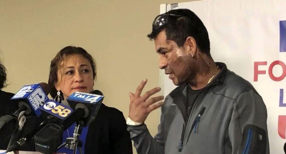 Mahud Villalaz explica ante la prensa el ataque que sufrió con ácido en Milwaukee. (Foto: AP).