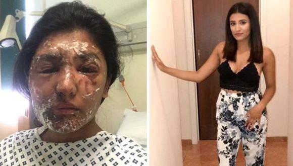 Resham Khan sufrió quemaduras en el rostro, brazos, piernas y hombro por un ataque con ácido. (Foto: Resham Khan)