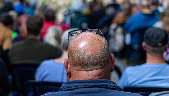 El pelo en sí tiene una estructura sencilla, pero su proceso de formación es increíblemente complejo. (Foto: Pixabay)