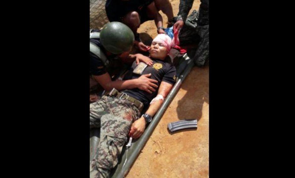 El sargento Edgardo Maymara sufrió heridas graves durante el ataque a la base militar.