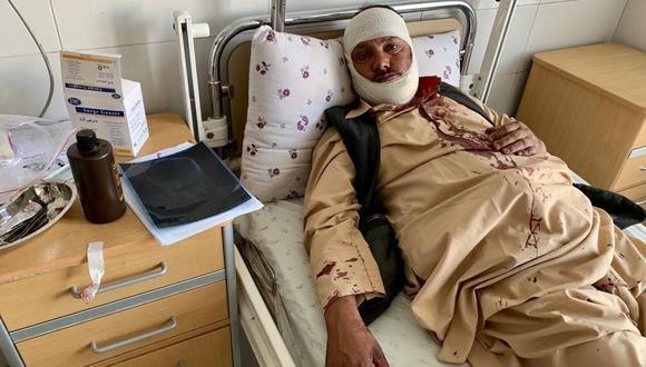Uno de los heridos por el atentado perpetrado por los talibanes. (EFE).