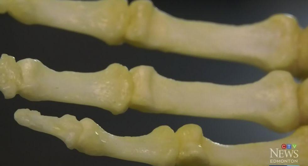 Un hombre en Canadá guardó el esqueleto de su brazo amputado como recuerdo. Su peculiar historia es viral en Facebook. (CTV News)