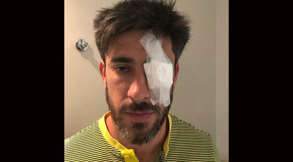 Pablo Pérez y su lesión en el ojo, tras el ataque al bus de Boca Juniors. (Foto: Jorge Batista @jpbatista)