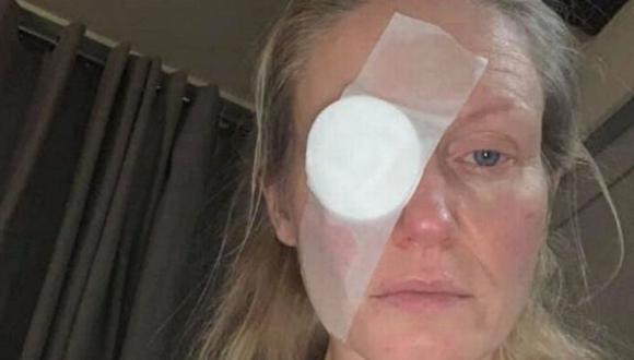 Toni Snelson (44) tuvo que usar un parche debido al accidente. (Foto: Toni Snelson Krajnik | Mirror)
