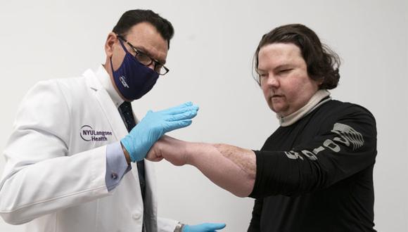 La cirugía de Joe DiMeo duró unas 23 horas. (AP)