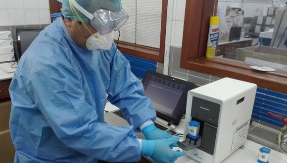 Cusco: Hospital de EsSalud Cusco realizará pruebas moleculares para COVID-19 y dará resultado en tres horas. (Foto: EsSalud)