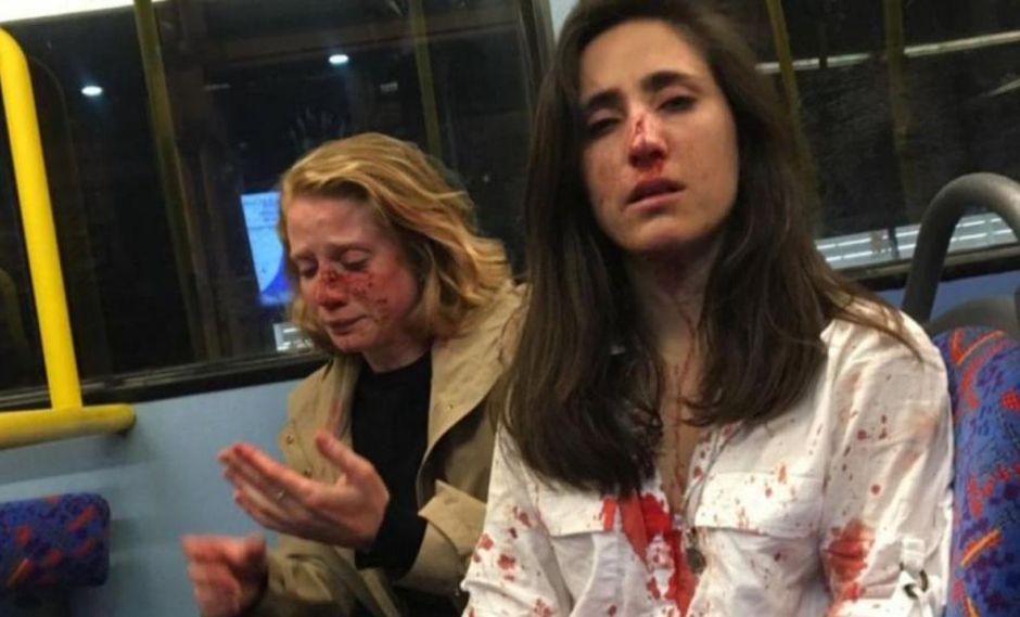 La uruguaya Melania Geymonat y su novia Chris rueron atacadas por al menos cuatro hombres las acosaron, las golpearon y les robaron antes de desaparecer.