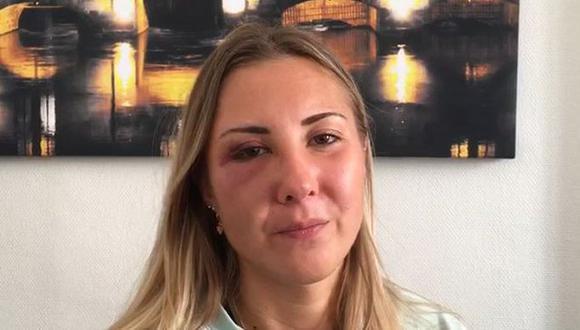 Una foto de la cara magullada de Elisabeth publicada en la cuenta de Twitter de France Bleu Alsace se hizo viral y provocó la furia de cientos de usuarios.