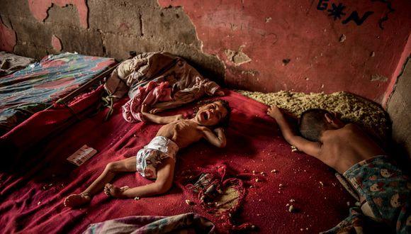 Anailin Nava, de dos años, está desnutrida y sufriendo de la falta de tratamiento médico. Su madre, Maibeli Nava, dijo que los médicos le recetan medicinas que no están disponibles o que no puede pagar. (Meridith Kohut para The New York Times).
