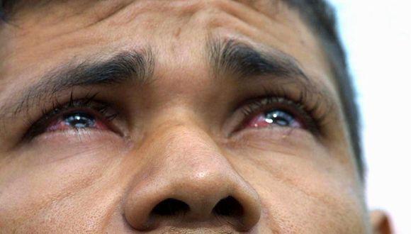 La conjuntivitis podría ser uno de los síntomas del coronavirus (Foto: AFP)