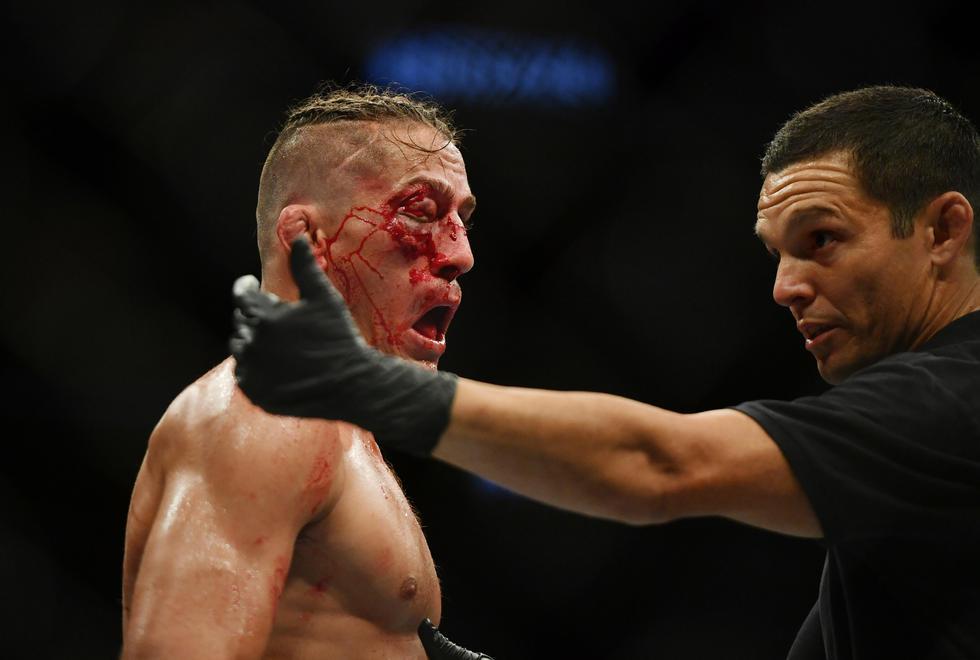 UFC 249: Niko Price terminó con un impactante corte en el ojo y perdió por nocaut ante Vicente Luque   Fot: AP/EFE/AFP/Reuters