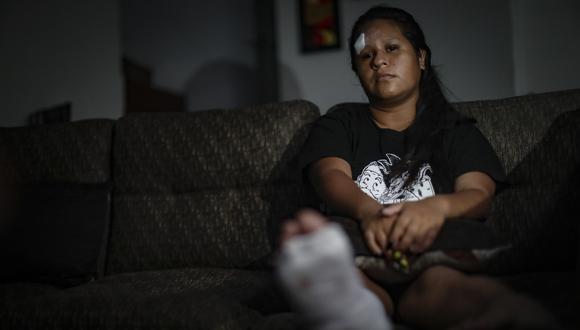 Jackelin Rosales Ramírez trabajaba desde hace tres años en la Municipalidad de El Agustino como fiscalizadora de tránsito de la ATU. La joven de 25 años señala ese era su principal ingreso para mantener a su hijo de tres años, madre y abuela. Ella espera recuperarse para volver a laborar (Foto: Hugo Pérez)