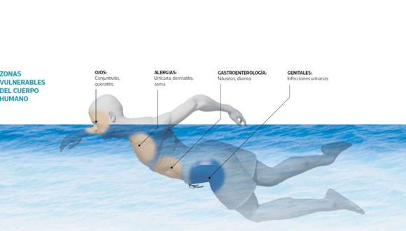 Hay varias partes del organismo que quedan particularmente vulnerables en una piscina, así esta se encuentre en las condiciones exigidas por las autoridades. (Infografía: Raúl Rodríguez)