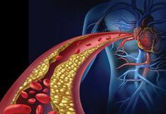 ¿Qué es la Enfermedad Obstructiva de las Arterias Coronarias y cómo prevenirla?