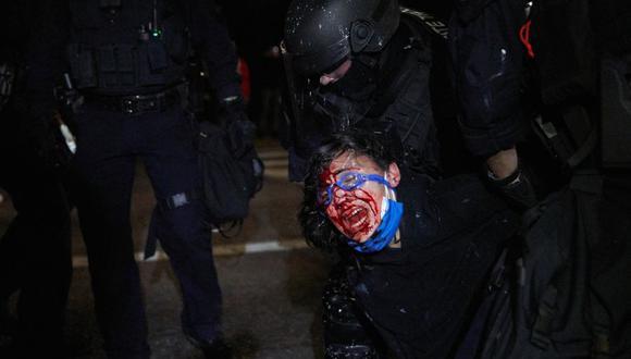 Un policía arresta a un manifestante herido en la cara y sangrando en Portland, el 4 de septiembre de 2020 durante una marcha para denunciar la brutalidad policial y el racismo. (Foto de Allison Dinner / AFP).