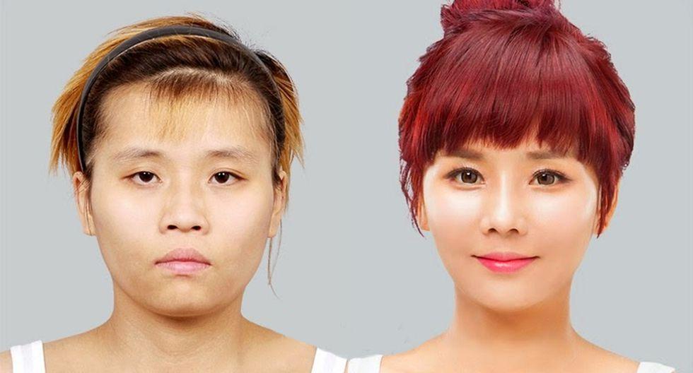Joven supera doloroso pasado gracias a las cirugías plásticas