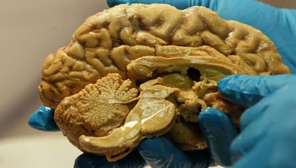 Descubren cómo se propagan las células cancerígenas al cerebro