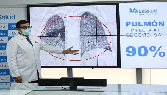 Essalud señala que las enfermedades pre existentes, edad de paciente y la genética determinan el avance del virus y la capacidad de defensa del organismo. (Foto: Essalud)