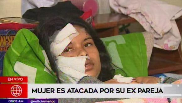Mujer atacada a golpes por su expareja
