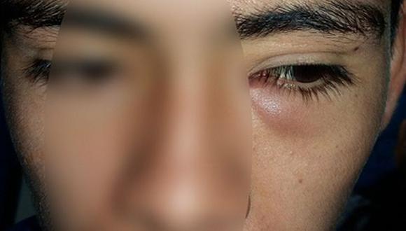 Doctores usan hojas de albahaca para salvar ojo a adolescente
