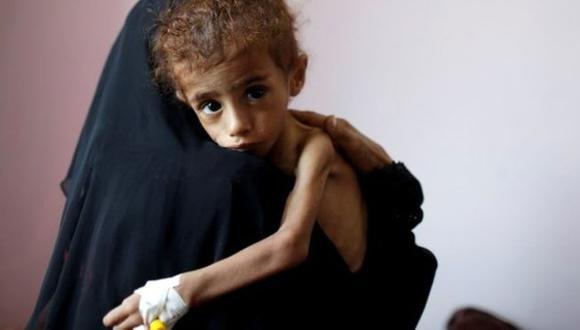 La guerra de Yemen está considerada como la mayor crisis humanitaria del mundo. Foto: GETTY IMAGES, vía BBC Mundo