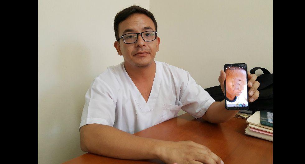 Piden ayuda para niño que sufre extraño síndrome que llena su cuerpo de escamas, en Piura (GEC)