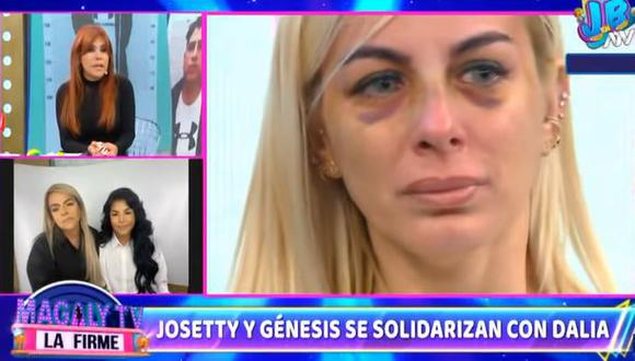 Hijas de Andrés Hurtado donan 10 mil dólares a Dalia Durán para que pague deuda de  departamento. (Foto: Captura de video)