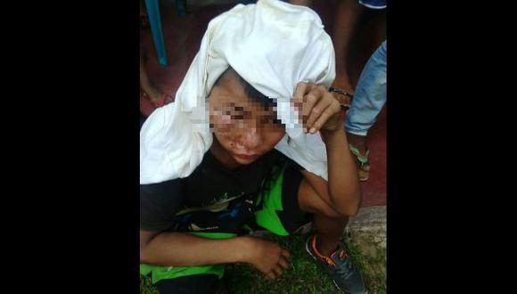 Menor queda desfigurado tras ser golpeado por su vecino