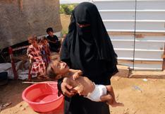 ¿Cómo Yemen llegó a tener a la mitad de su población al borde de la hambruna?