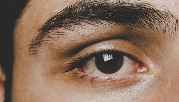 Remedios naturales para acabar con la caspa en las cejas. (Foto: Samer Daboul | Pexels)
